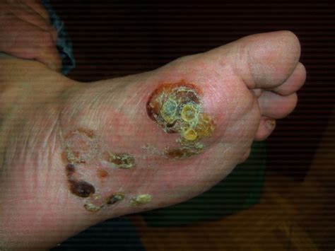 athlete foot blisters | Medical Information