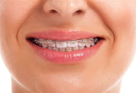 Need dental braces or orthodintic treatment in Brandon, MB