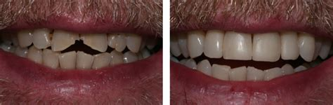 Bioclear Dental Treatment by Smile Concepts, Solihull