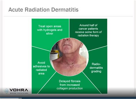 Atypical Wounds   Vohra Wound Physicians